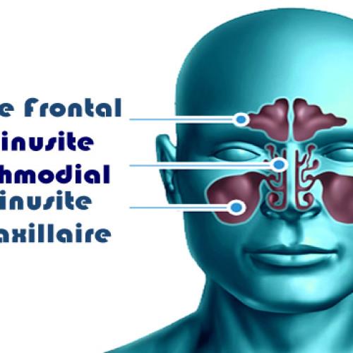 Como fazer remedio caseiro para sinusite