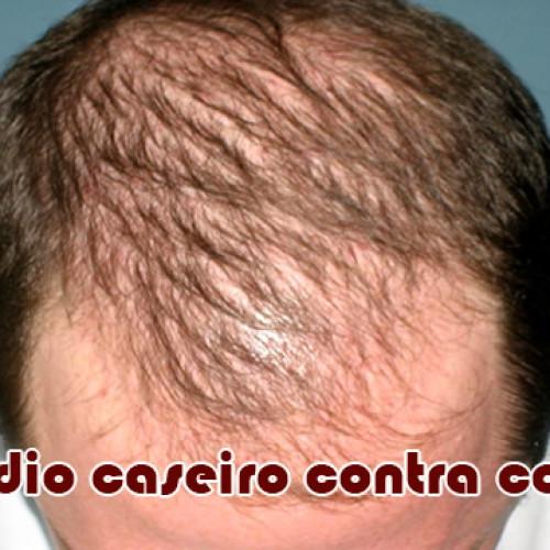 Como fazer remédio caseiro para queda de cabelo