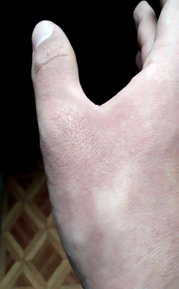 manchas limao na pele